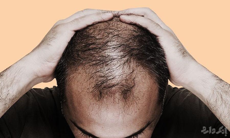 ریزش مو در مردان | عوامل ریزش مو در آقایان | درمان های ریزش مو در مردان