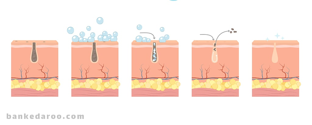 پاک کننده پوست   بهترین پاک کننده پوست   لیست قیمت و خرید انواع پاک کننده پوست