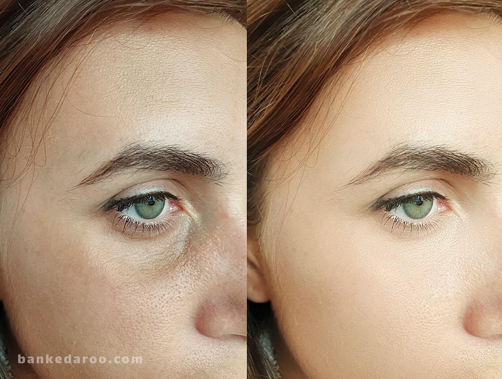 محصولات لیفتینگ پوست | بهترین لیفت کننده پوست | لیست قیمت و خرید لیفت کننده پوست